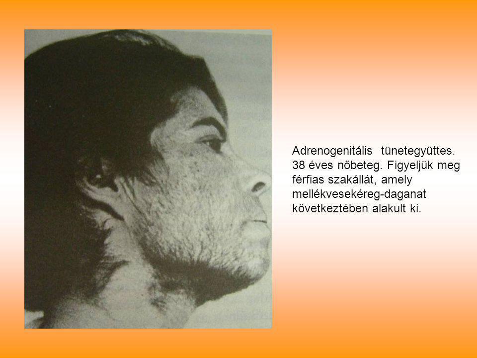 Adrenogenitális tünetegyüttes. 38 éves nőbeteg. Figyeljük meg férfias szakállát, amely mellékvesekéreg-daganat következtében alakult ki.