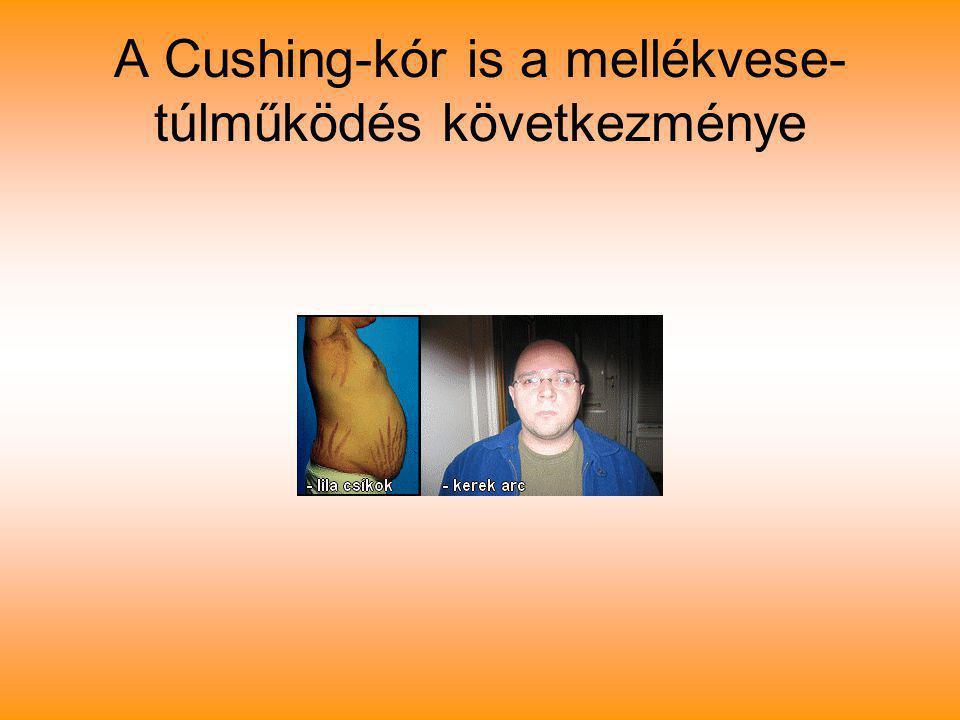 A Cushing-kór is a mellékvese- túlműködés következménye