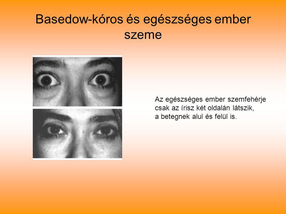 Basedow-kóros és egészséges ember szeme Az egészséges ember szemfehérje csak az írisz két oldalán látszik, a betegnek alul és felül is.