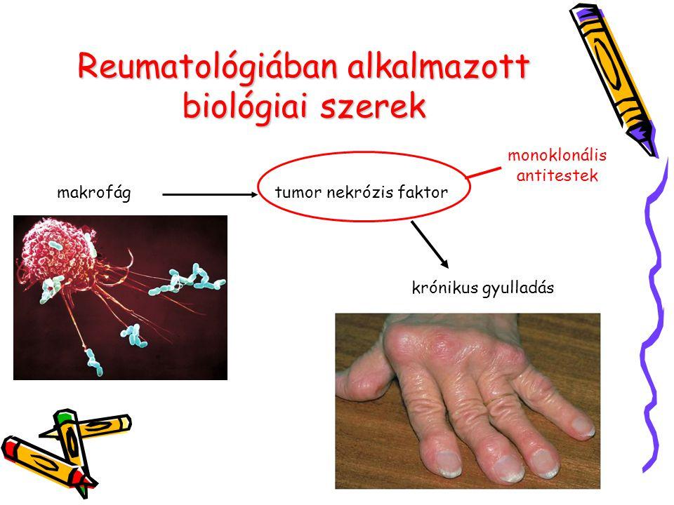 Reumatológiában alkalmazott biológiai szerek makrofágtumor nekrózis faktor krónikus gyulladás monoklonális antitestek