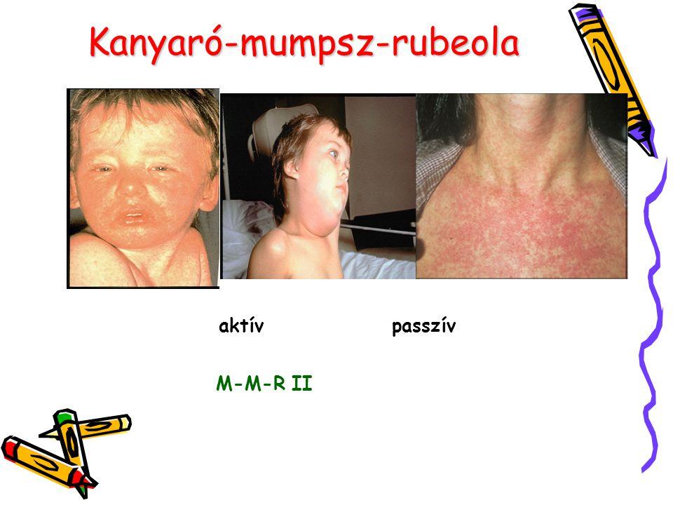 Kanyaró-mumpsz-rubeola aktív passzív M-M-R II