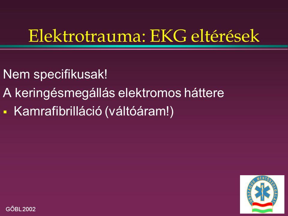 GŐBL 2002 Elektrotrauma: EKG eltérések Nem specifikusak! A keringésmegállás elektromos háttere  Kamrafibrilláció (váltóáram!)