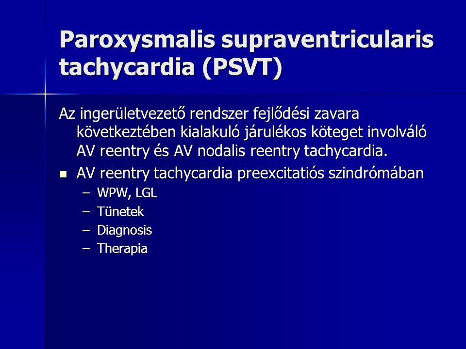 Paroxysmalis supraventricularis tachycardia (PSVT) Az ingerületvezető rendszer fejlődési zavara következtében kialakuló járulékos köteget involváló AV