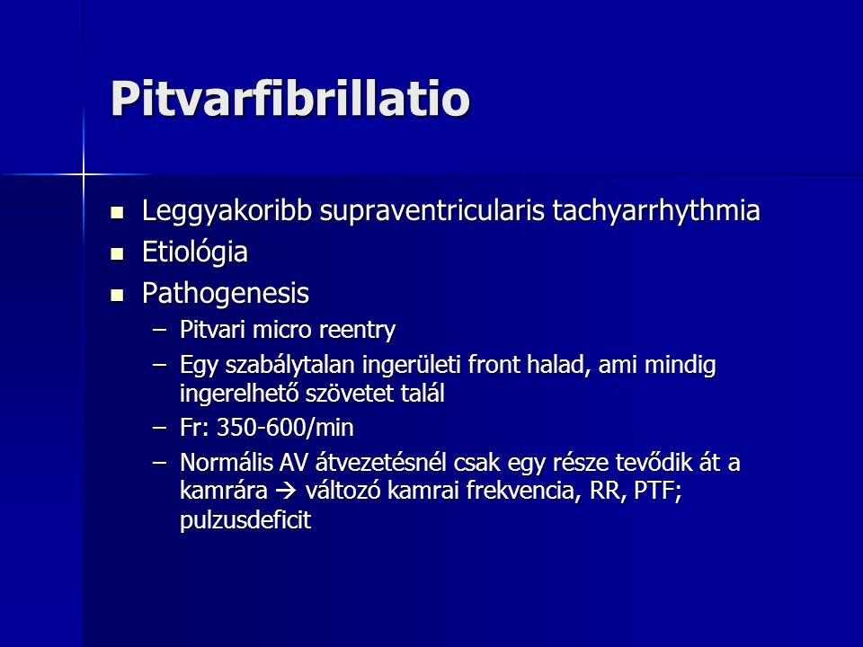 Pitvarfibrillatio Leggyakoribb supraventricularis tachyarrhythmia Leggyakoribb supraventricularis tachyarrhythmia Etiológia Etiológia Pathogenesis Pat