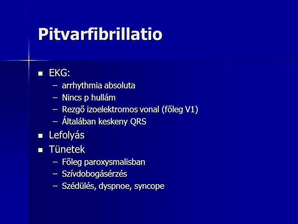 Pitvarfibrillatio EKG: EKG: –arrhythmia absoluta –Nincs p hullám –Rezgő izoelektromos vonal (főleg V1) –Általában keskeny QRS Lefolyás Lefolyás Tünete