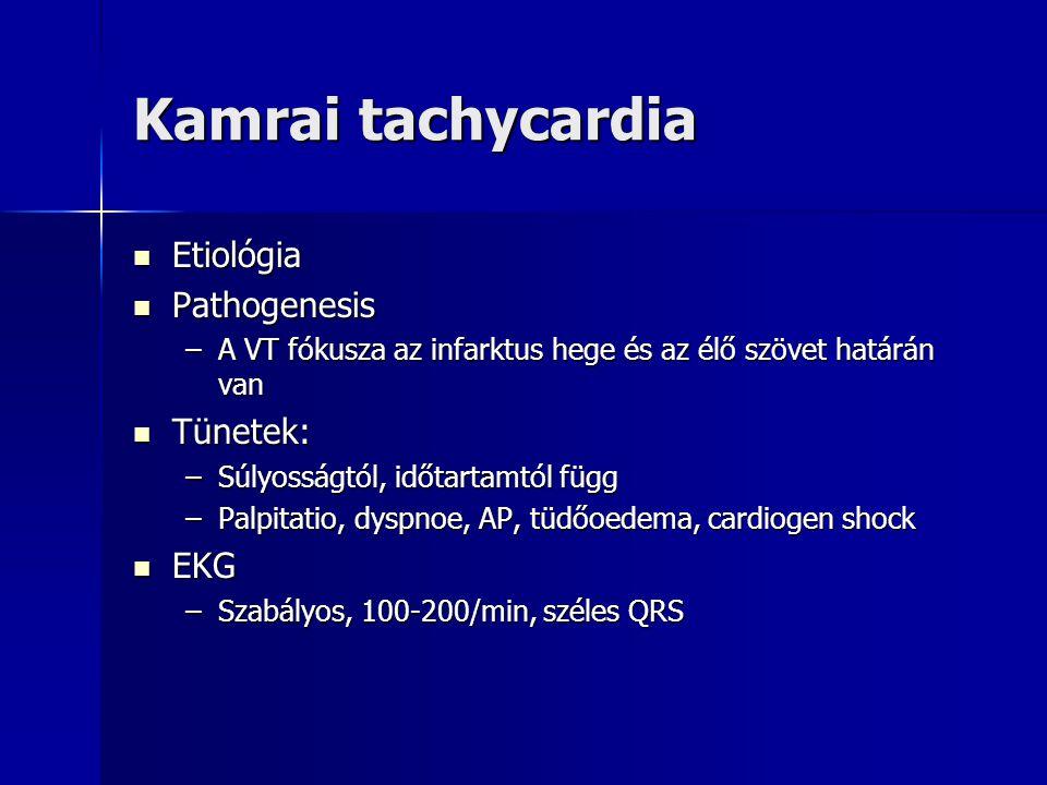 Kamrai tachycardia Etiológia Etiológia Pathogenesis Pathogenesis –A VT fókusza az infarktus hege és az élő szövet határán van Tünetek: Tünetek: –Súlyo