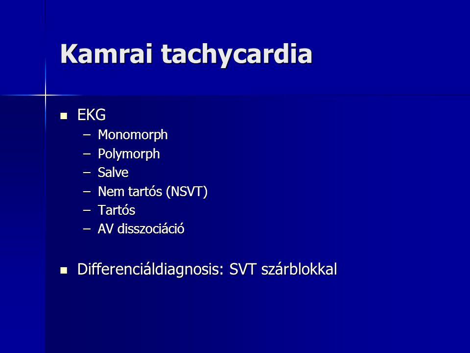 Kamrai tachycardia EKG EKG –Monomorph –Polymorph –Salve –Nem tartós (NSVT) –Tartós –AV disszociáció Differenciáldiagnosis: SVT szárblokkal Differenciá
