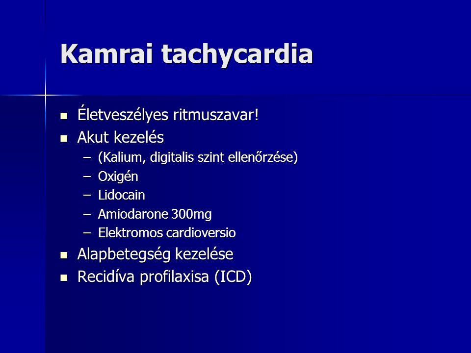 Kamrai tachycardia Életveszélyes ritmuszavar! Életveszélyes ritmuszavar! Akut kezelés Akut kezelés –(Kalium, digitalis szint ellenőrzése) –Oxigén –Lid