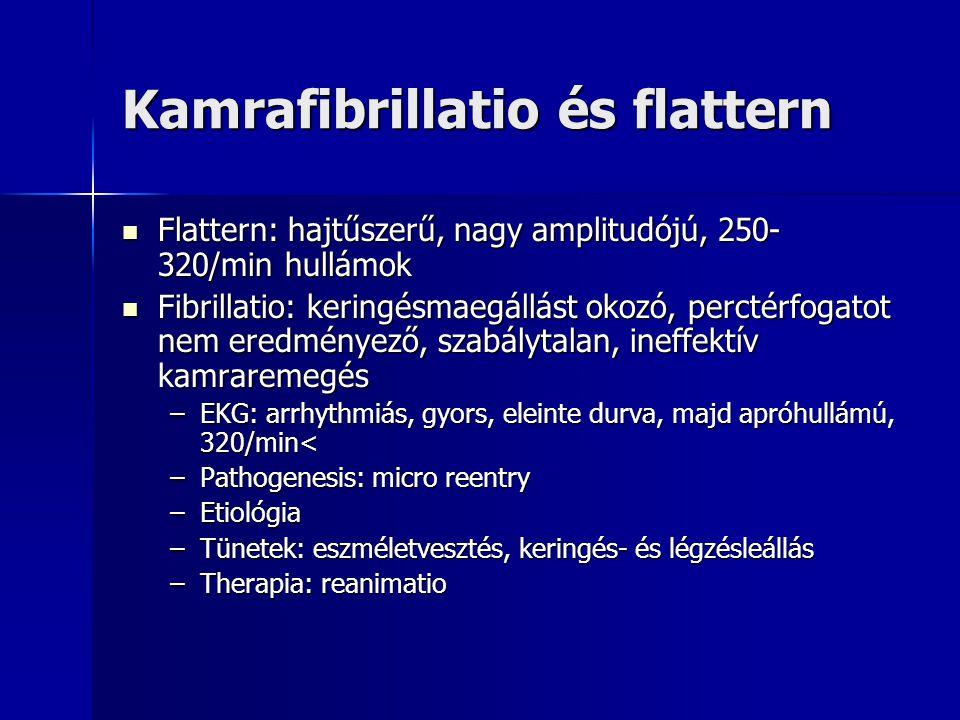 Kamrafibrillatio és flattern Flattern: hajtűszerű, nagy amplitudójú, 250- 320/min hullámok Flattern: hajtűszerű, nagy amplitudójú, 250- 320/min hullám