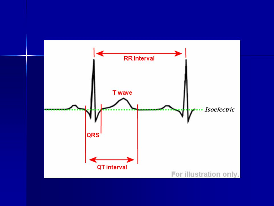 Pitvari tachycardia 1.Unifocalis 1.