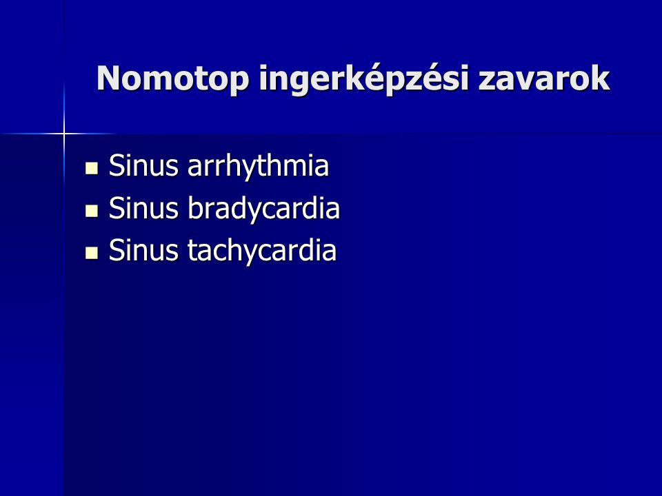 Nomotop ingerképzési zavarok Nomotop ingerképzési zavarok Sinus arrhythmia Sinus arrhythmia Sinus bradycardia Sinus bradycardia Sinus tachycardia Sinu