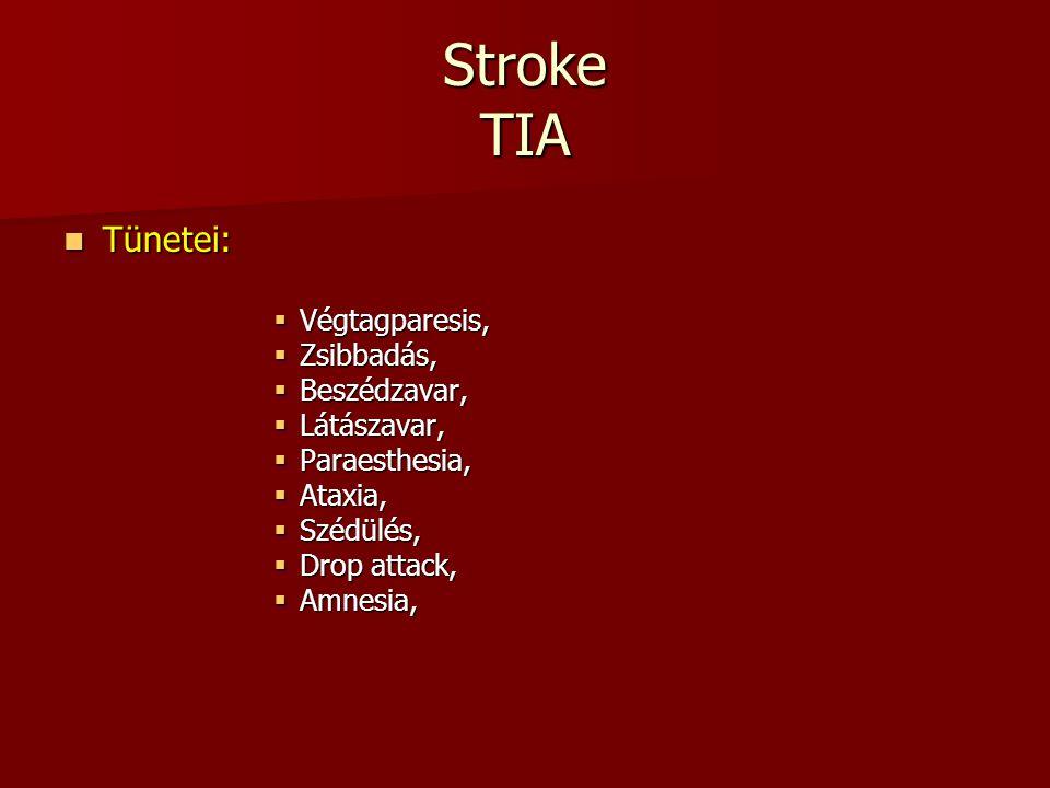 Stroke TIA Tünetei: Tünetei:  Végtagparesis,  Zsibbadás,  Beszédzavar,  Látászavar,  Paraesthesia,  Ataxia,  Szédülés,  Drop attack,  Amnesia