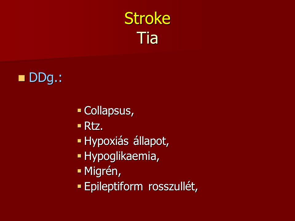 Stroke Tia DDg.: DDg.:  Collapsus,  Rtz.  Hypoxiás állapot,  Hypoglikaemia,  Migrén,  Epileptiform rosszullét,