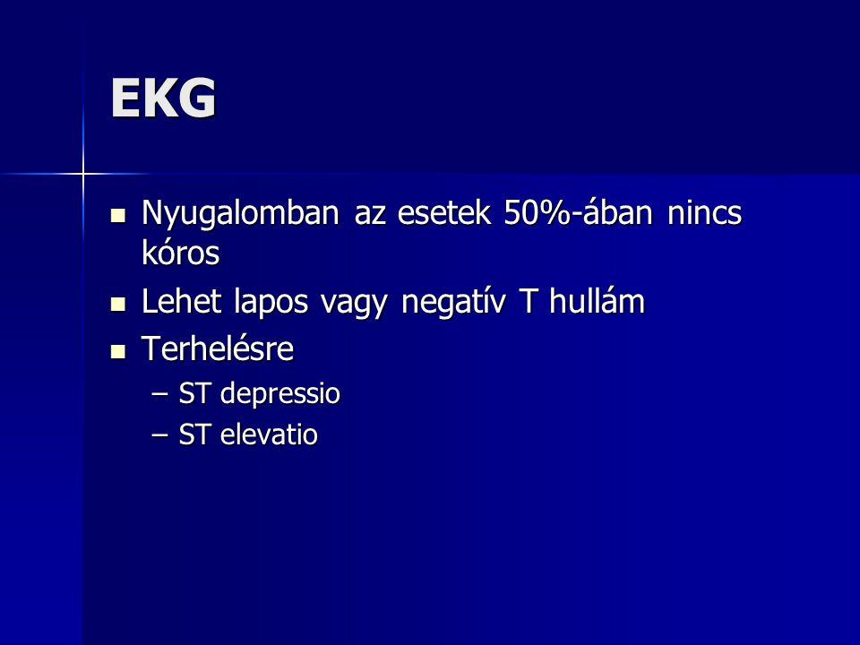 EKG Nyugalomban az esetek 50%-ában nincs kóros Nyugalomban az esetek 50%-ában nincs kóros Lehet lapos vagy negatív T hullám Lehet lapos vagy negatív T