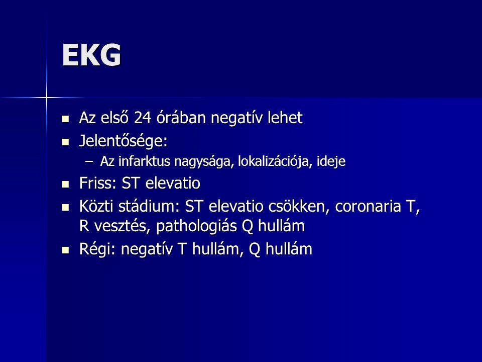 EKG Az első 24 órában negatív lehet Az első 24 órában negatív lehet Jelentősége: Jelentősége: –Az infarktus nagysága, lokalizációja, ideje Friss: ST e