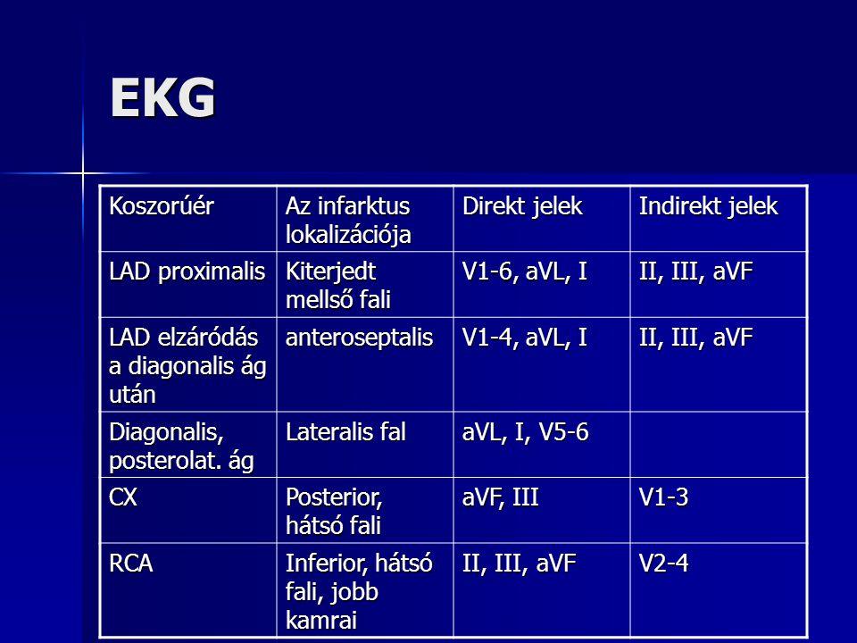 EKG Koszorúér Az infarktus lokalizációja Direkt jelek Indirekt jelek LAD proximalis Kiterjedt mellső fali V1-6, aVL, I II, III, aVF LAD elzáródás a di