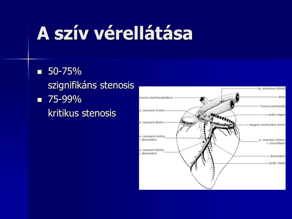A szív vérellátása 50-75% 50-75% szignifikáns stenosis 75-99% 75-99% kritikus stenosis