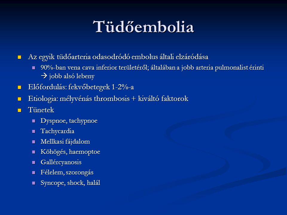Tüdőembolia Az egyik tüdőarteria odasodródó embolus általi elzáródása Az egyik tüdőarteria odasodródó embolus általi elzáródása 90%-ban vena cava infe