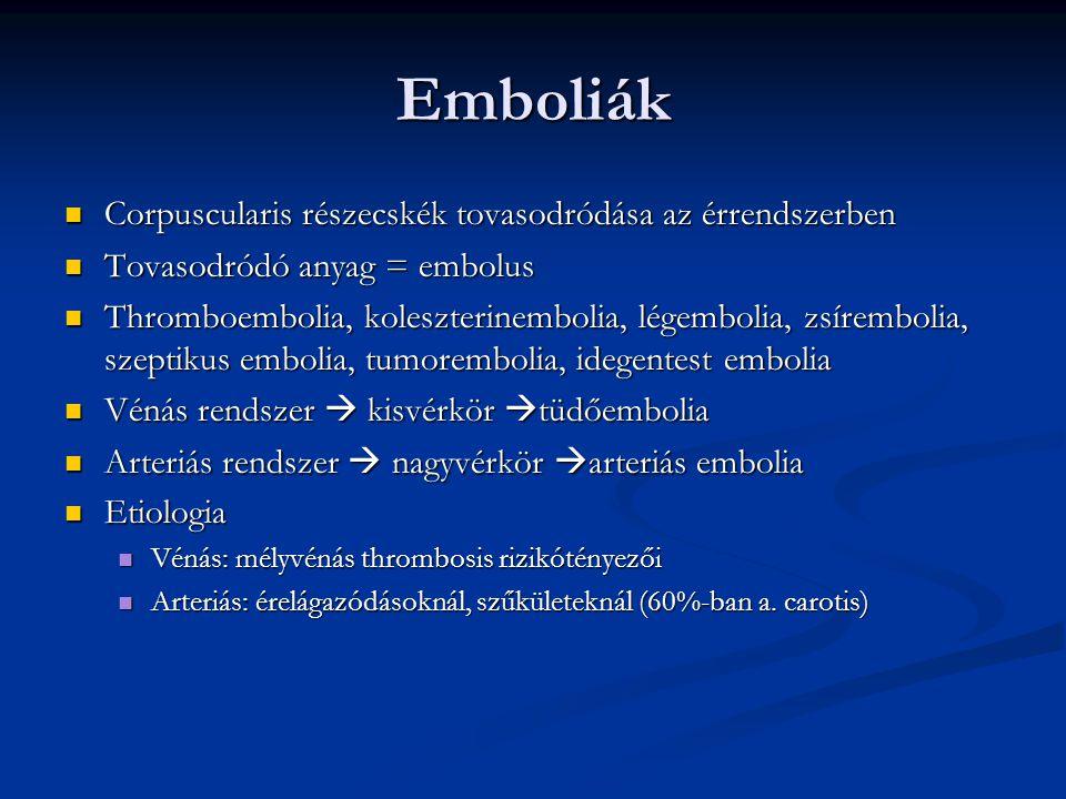 Akut arteriás elzáródás végtagon Leggyakoribb angiologiai sürgősségi eset Leggyakoribb angiologiai sürgősségi eset Etiologia Etiologia Embolia 70%: 90%-ban a szívből ( Pitvarfibrillatio, endocarditis) Embolia 70%: 90%-ban a szívből ( Pitvarfibrillatio, endocarditis) Periferiás arteriás szűkület talaján kialakult thrombosis 20% Periferiás arteriás szűkület talaján kialakult thrombosis 20% Egyéb ok: külső leszorítás Egyéb ok: külső leszorítás Teljes ischaemia 6P Teljes ischaemia 6P Hirtelen fellépő fájdalom – Pain Hirtelen fellépő fájdalom – Pain Sápadtság – Pallor Sápadtság – Pallor Érzészavar – Paraesthesia Érzészavar – Paraesthesia Hiányzó pulzus – Pulselessness Hiányzó pulzus – Pulselessness Mozgásképtelenség – Paralysis Mozgásképtelenség – Paralysis Shock – Prostration Shock – Prostration Részleges ischaemia: érzéskiesés, paralysis nélkül Részleges ischaemia: érzéskiesés, paralysis nélkül