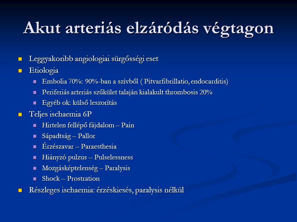 Akut arteriás elzáródás végtagon Az ischaemiás fájdalom és a pulzus hiánya a szűkülettől distalisan Az ischaemiás fájdalom és a pulzus hiánya a szűkülettől distalisan Szövődmények Szövődmények Diagnosis Diagnosis Szívbetegség Szívbetegség Arrhythmia absoluta Arrhythmia absoluta Claudicatio intermittens Claudicatio intermittens Pulzusvizsgálat Pulzusvizsgálat Therapia: Therapia: Végtag lógatása, i.v.
