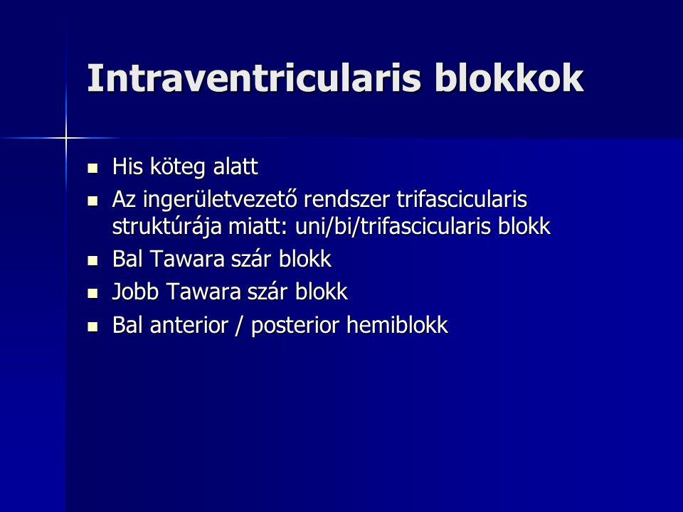 Intraventricularis blokkok His köteg alatt His köteg alatt Az ingerületvezető rendszer trifascicularis struktúrája miatt: uni/bi/trifascicularis blokk Az ingerületvezető rendszer trifascicularis struktúrája miatt: uni/bi/trifascicularis blokk Bal Tawara szár blokk Bal Tawara szár blokk Jobb Tawara szár blokk Jobb Tawara szár blokk Bal anterior / posterior hemiblokk Bal anterior / posterior hemiblokk