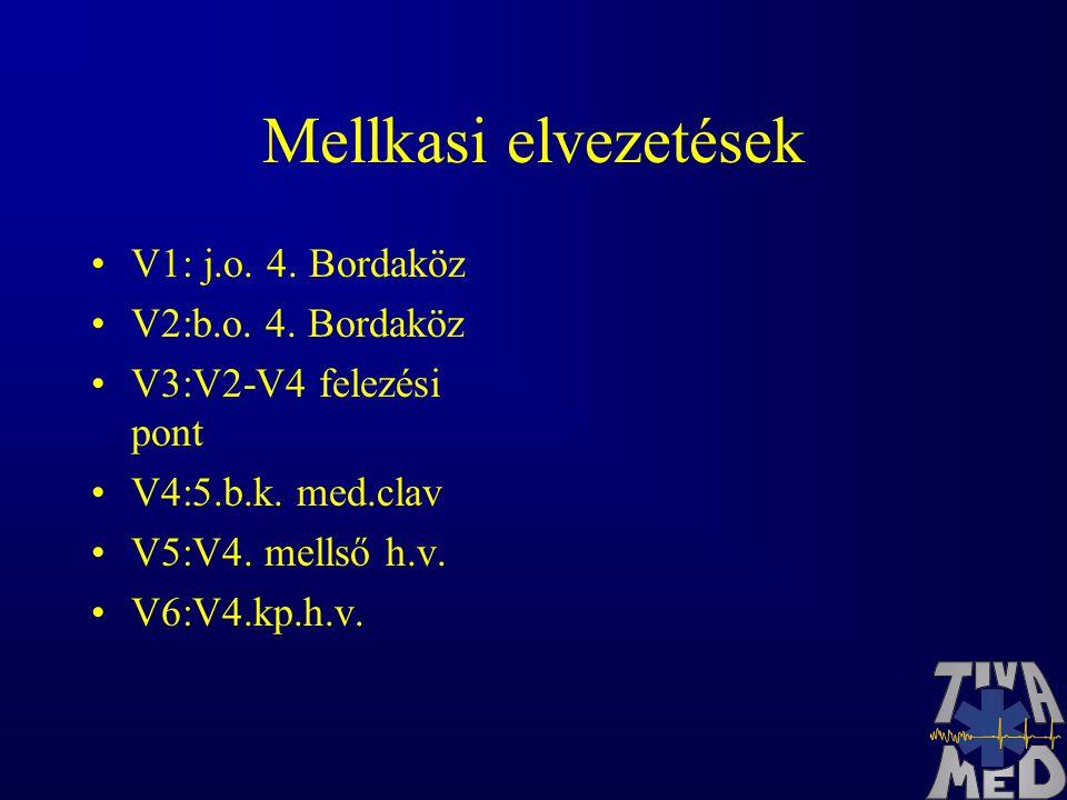 Mellkasi elvezetések V1: j.o.4. Bordaköz V2:b.o. 4.