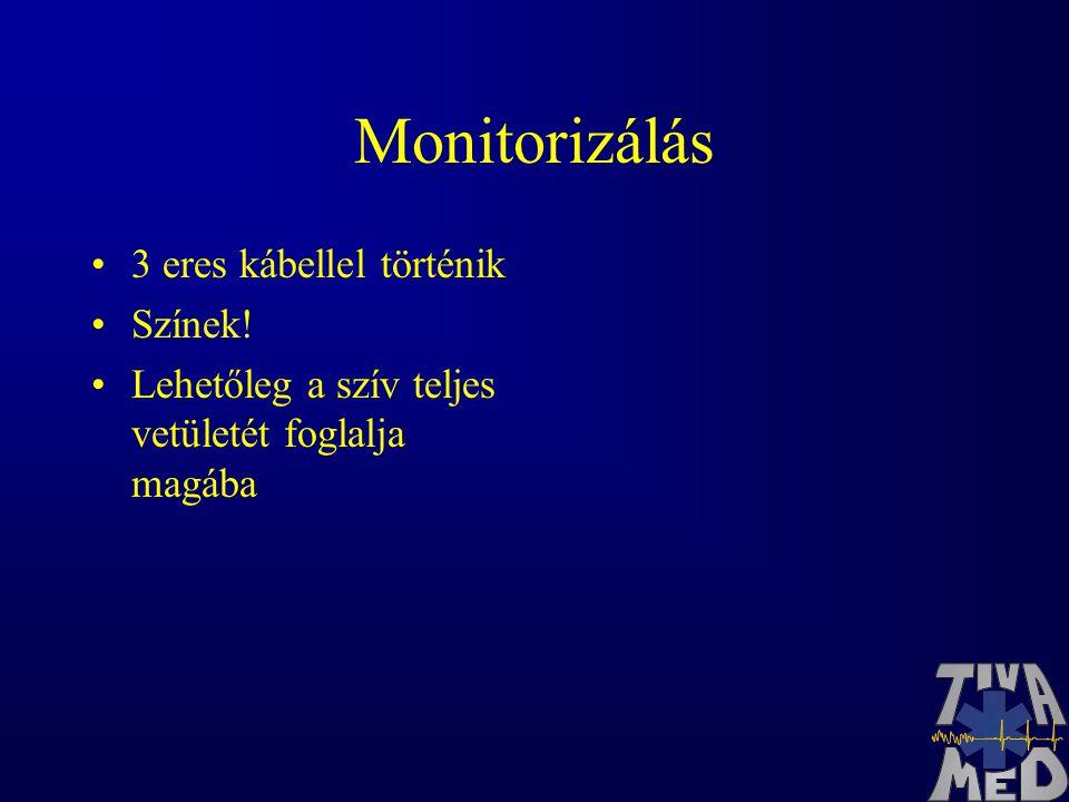 Monitorizálás 3 eres kábellel történik Színek! Lehetőleg a szív teljes vetületét foglalja magába