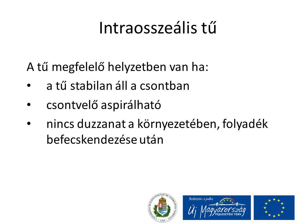 Intraosszeális tű A tű megfelelő helyzetben van ha: a tű stabilan áll a csontban csontvelő aspirálható nincs duzzanat a környezetében, folyadék befecs