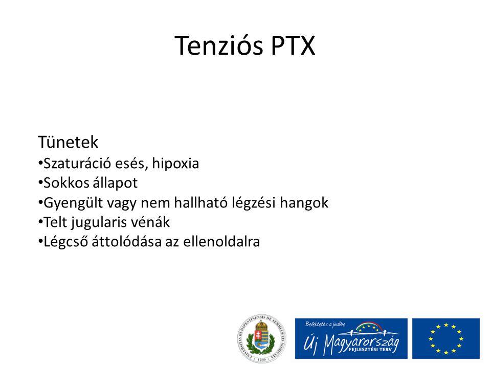 Tenziós PTX Tünetek Szaturáció esés, hipoxia Sokkos állapot Gyengült vagy nem hallható légzési hangok Telt jugularis vénák Légcső áttolódása az ellenoldalra