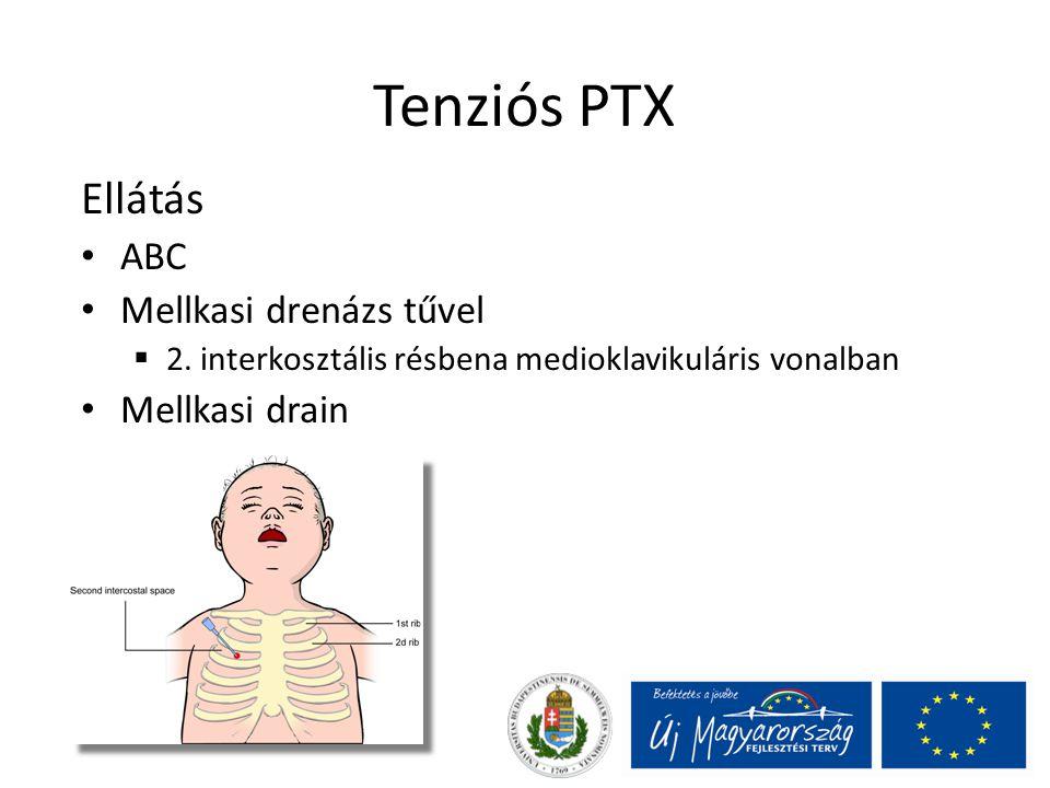 Tenziós PTX Ellátás ABC Mellkasi drenázs tűvel  2.