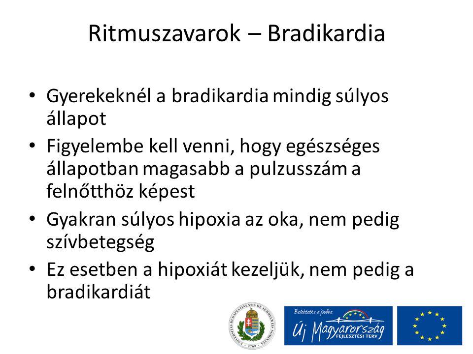 Ritmuszavarok – Bradikardia Gyerekeknél a bradikardia mindig súlyos állapot Figyelembe kell venni, hogy egészséges állapotban magasabb a pulzusszám a