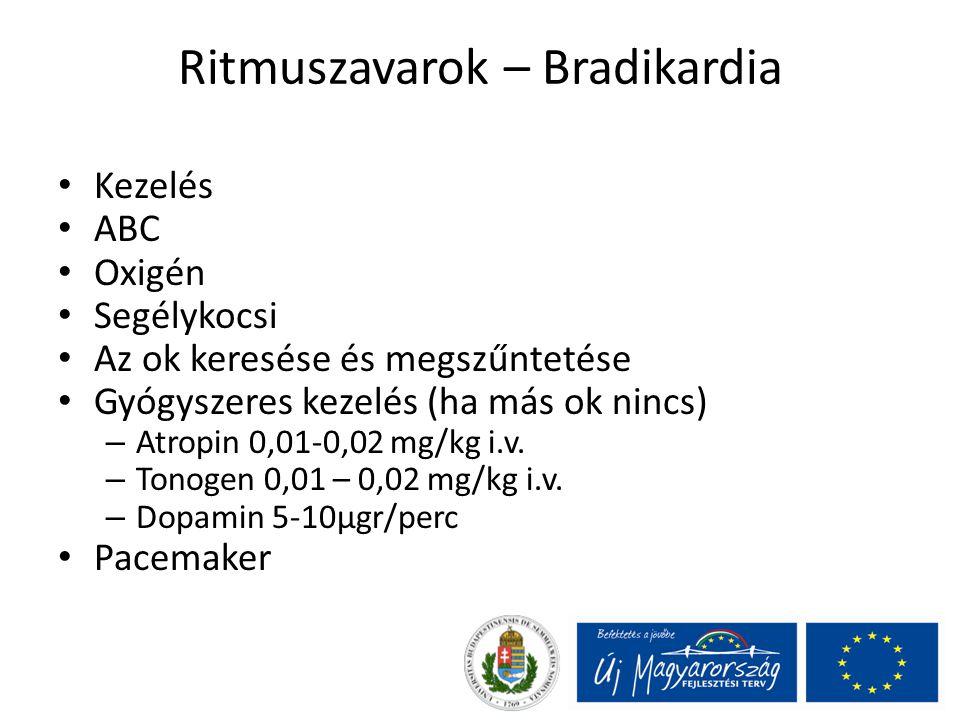 Ritmuszavarok – Bradikardia Kezelés ABC Oxigén Segélykocsi Az ok keresése és megszűntetése Gyógyszeres kezelés (ha más ok nincs) – Atropin 0,01-0,02 m