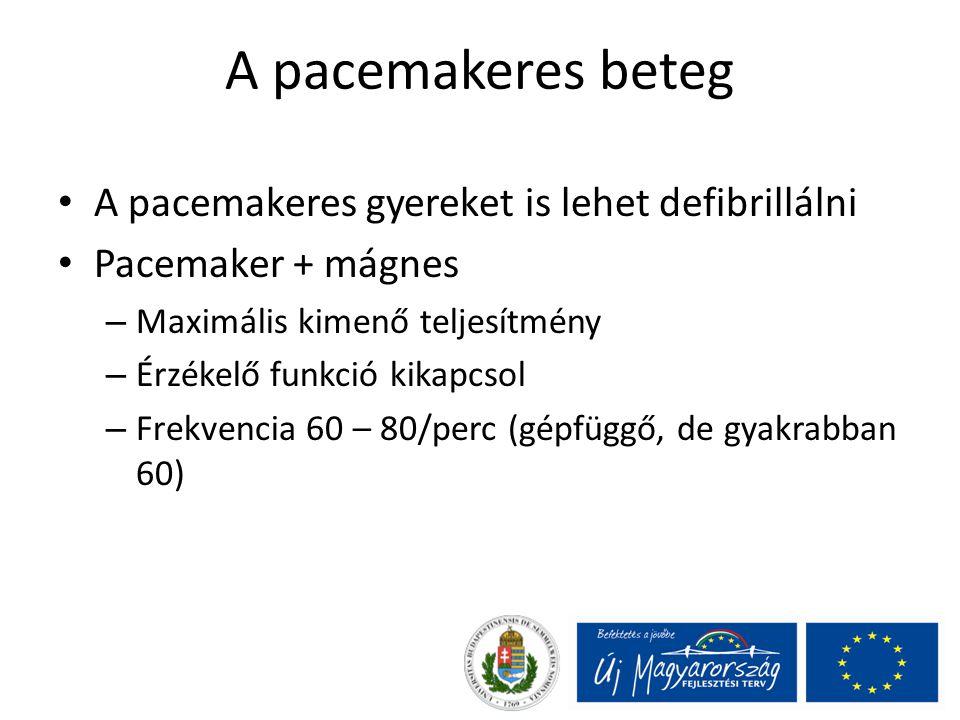 A pacemakeres beteg A pacemakeres gyereket is lehet defibrillálni Pacemaker + mágnes – Maximális kimenő teljesítmény – Érzékelő funkció kikapcsol – Fr