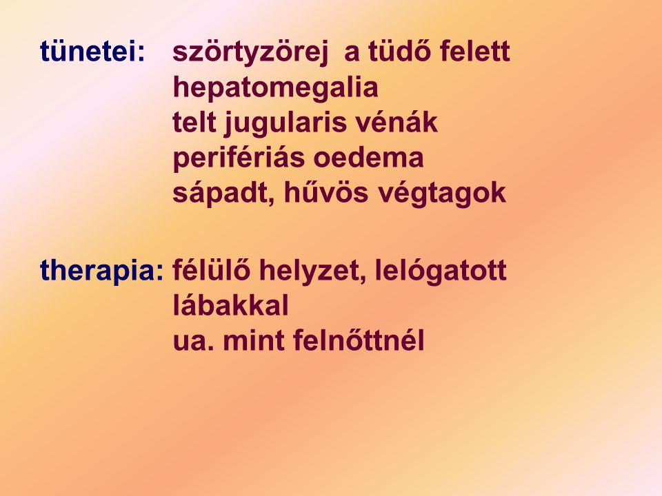 tünetei:szörtyzörej a tüdő felett hepatomegalia telt jugularis vénák perifériás oedema sápadt, hűvös végtagok therapia: félülő helyzet, lelógatott láb