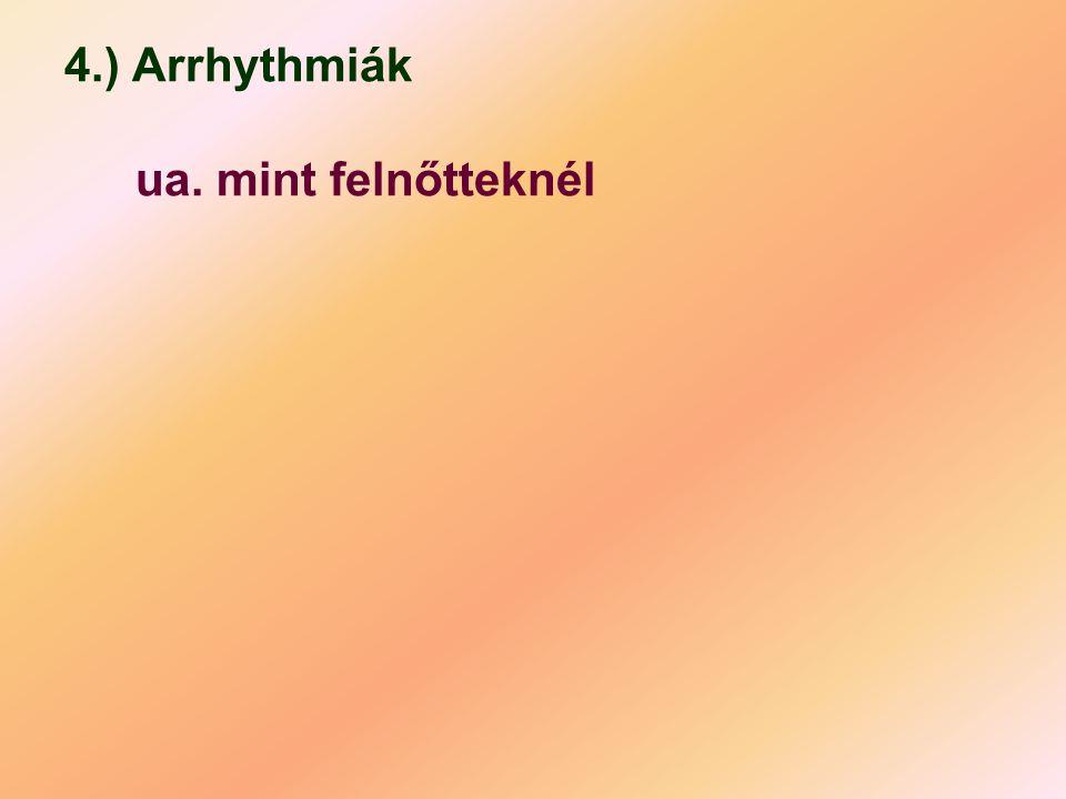 4.) Arrhythmiák ua. mint felnőtteknél