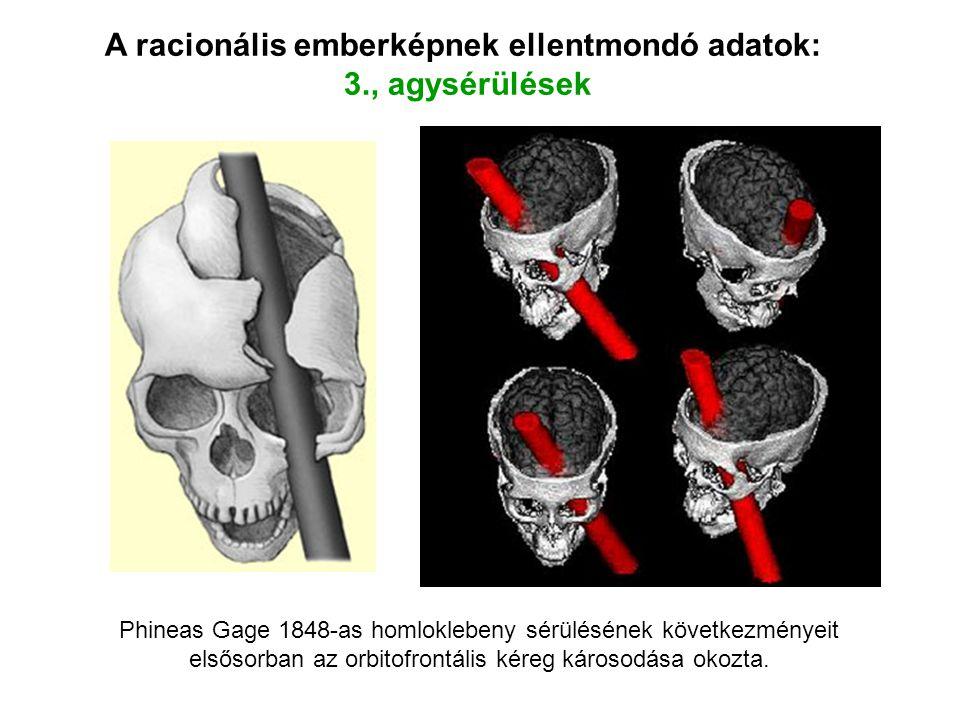 A racionális emberképnek ellentmondó adatok: 3., agysérülések Phineas Gage 1848-as homloklebeny sérülésének következményeit elsősorban az orbitofrontá