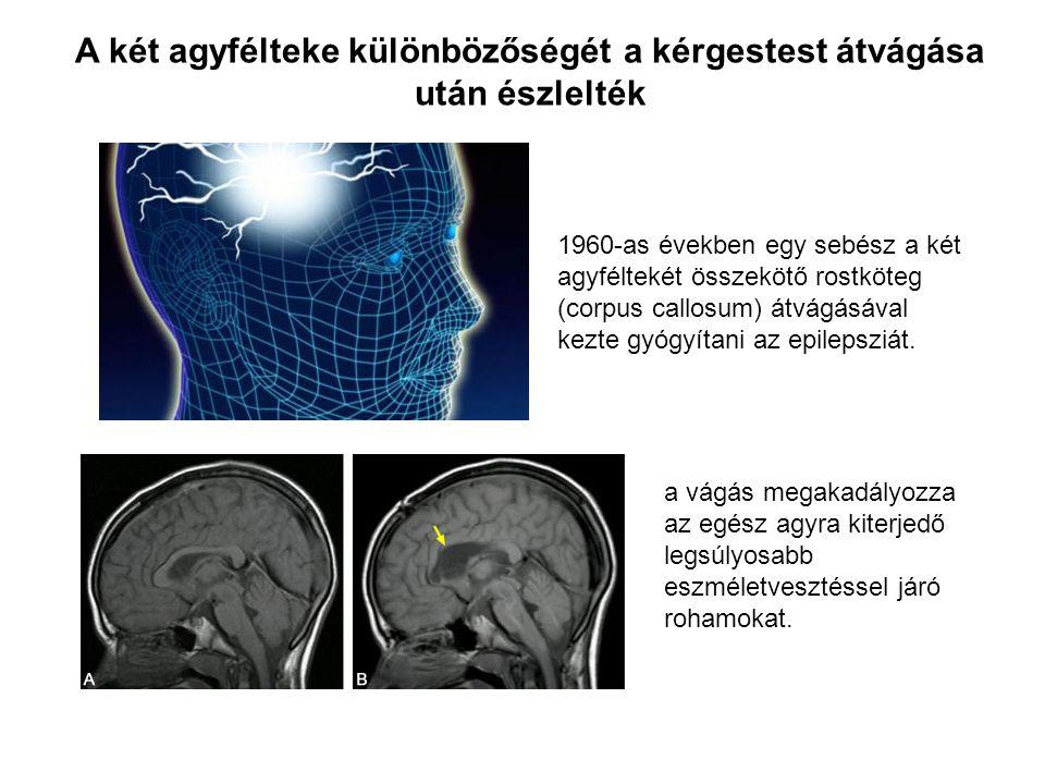 1960-as években egy sebész a két agyféltekét összekötő rostköteg (corpus callosum) átvágásával kezte gyógyítani az epilepsziát. A két agyfélteke külön