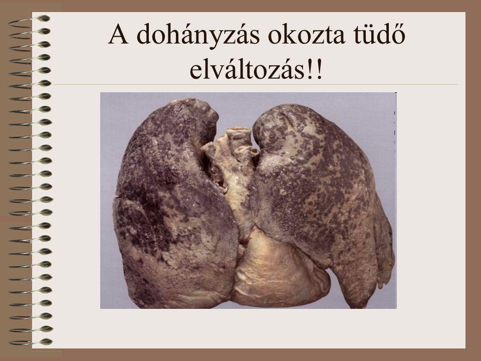 A dohányzás okozta tüdő elváltozás!!