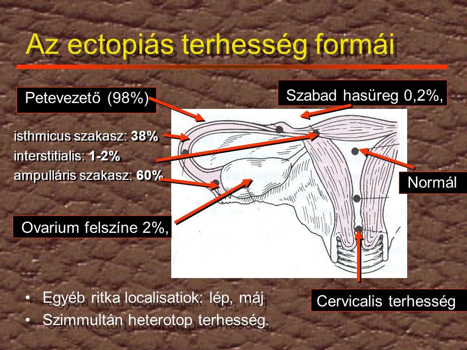 Az ectopiás terhesség formái Egyéb ritka localisatiok: lép, máj Szimmultán heterotop terhesség. Egyéb ritka localisatiok: lép, máj Szimmultán heteroto