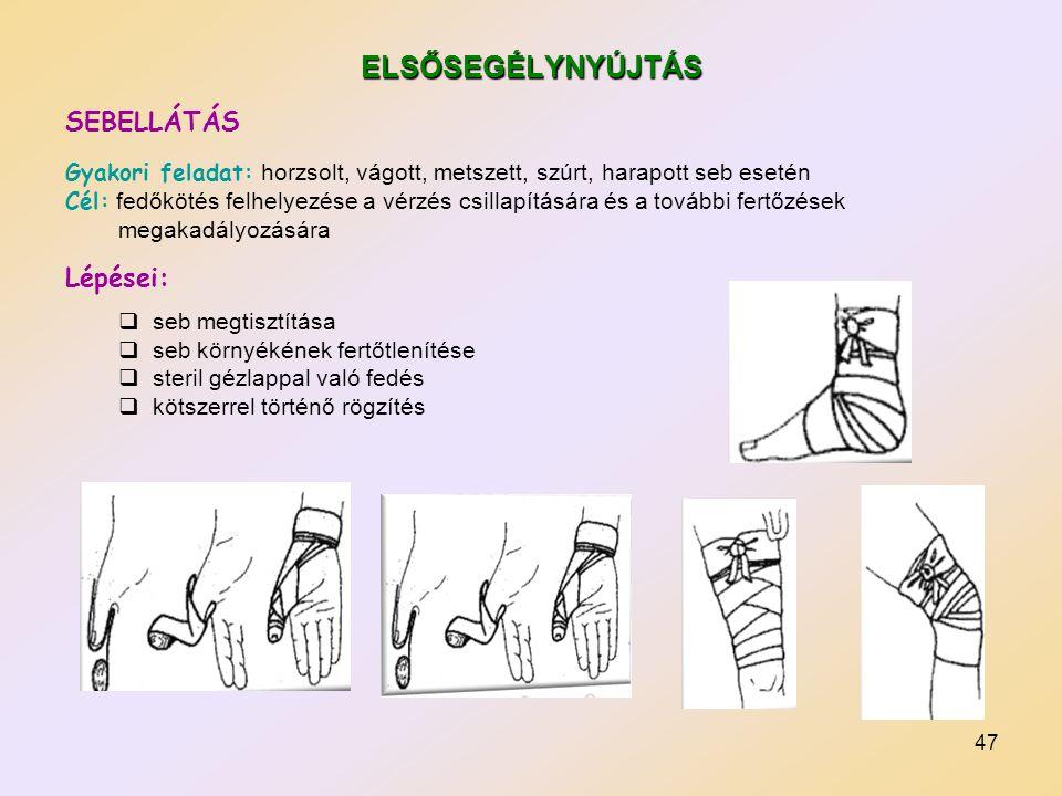 47 ELSŐSEGÉLYNYÚJTÁS SEBELLÁTÁS Gyakori feladat: horzsolt, vágott, metszett, szúrt, harapott seb esetén Cél: fedőkötés felhelyezése a vérzés csillapít