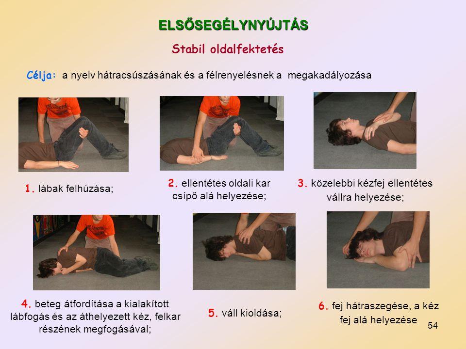 54 ELSŐSEGÉLYNYÚJTÁS 1. lábak felhúzása; 2. ellentétes oldali kar csípő alá helyezése; 3. közelebbi kézfej ellentétes vállra helyezése; 4. beteg átfor