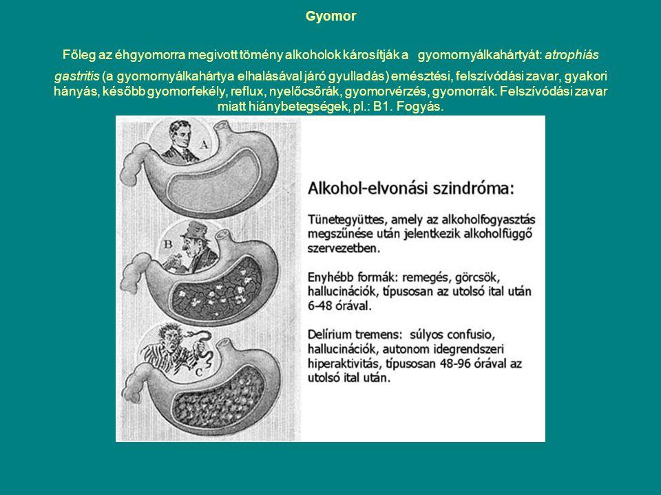 Gyomor Főleg az éhgyomorra megivott tömény alkoholok károsítják a gyomornyálkahártyát: atrophiás gastritis (a gyomornyálkahártya elhalásával járó gyul