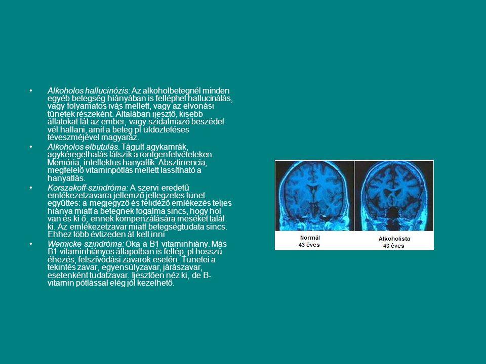 Alkoholos hallucinózis: Az alkoholbetegnél minden egyéb betegség hiányában is felléphet hallucinálás, vagy folyamatos ivás mellett, vagy az elvonási t