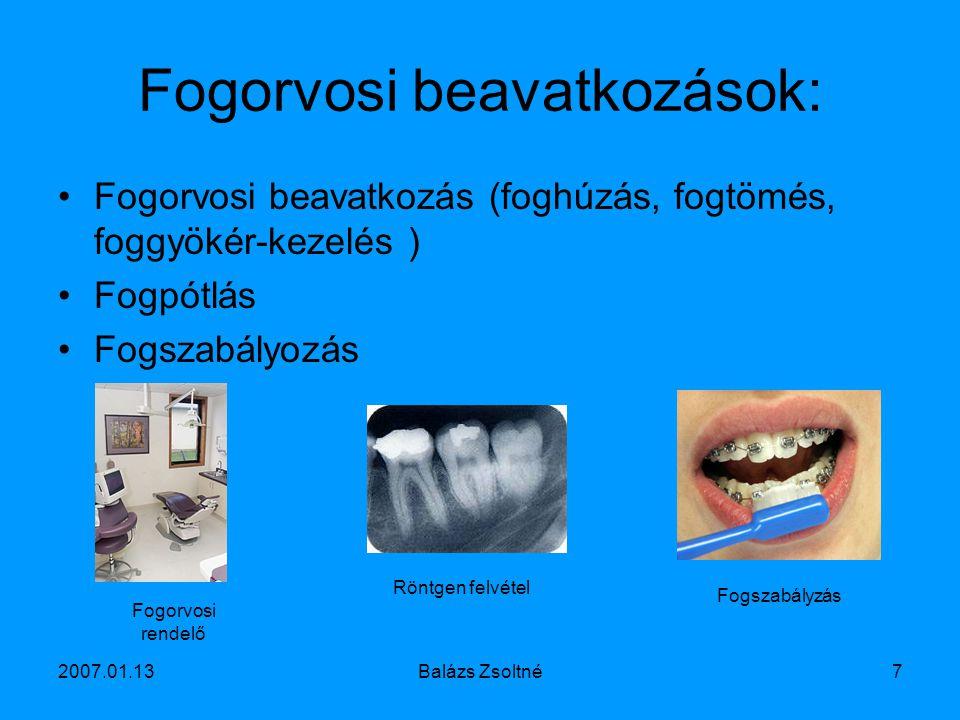 2007.01.13Balázs Zsoltné7 Fogorvosi beavatkozások: Fogorvosi beavatkozás (foghúzás, fogtömés, foggyökér-kezelés ) Fogpótlás Fogszabályozás Fogorvosi r