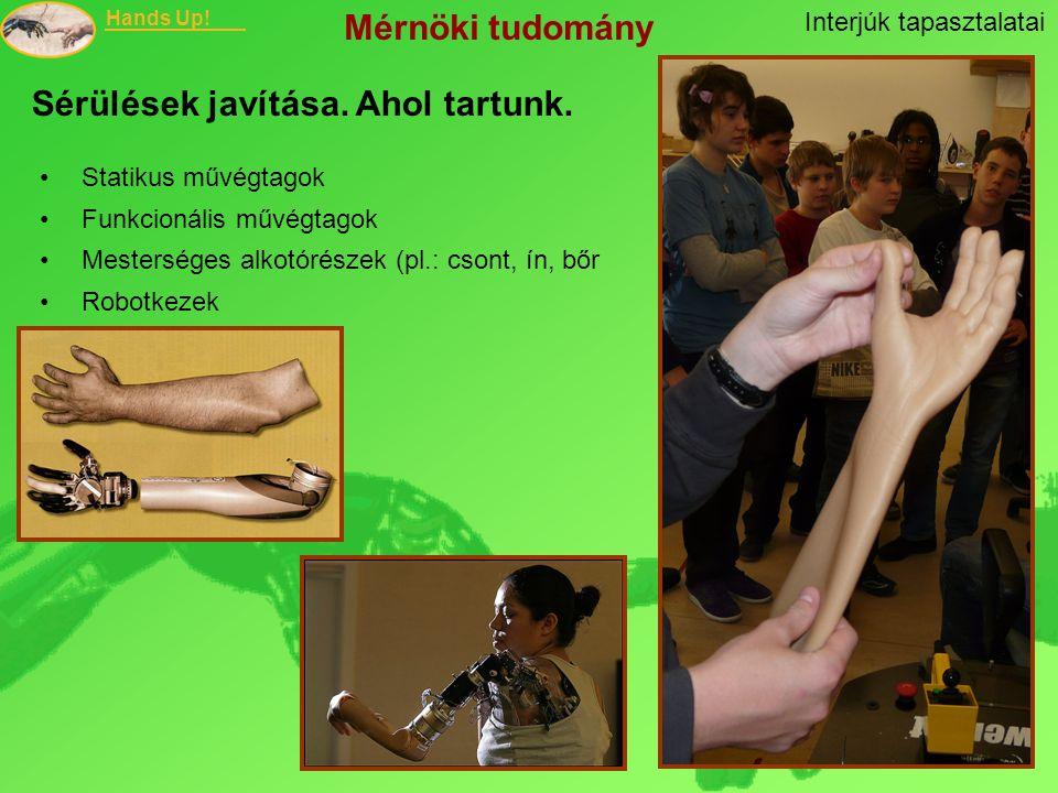Hands Up! Statikus művégtagok Funkcionális művégtagok Mesterséges alkotórészek (pl.: csont, ín, bőr Robotkezek Sérülések javítása. Ahol tartunk. Inter