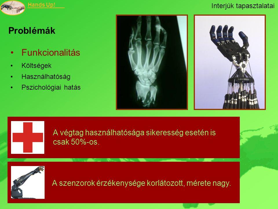 Hands Up! Problémák Funkcionalitás Költségek Használhatóság Pszichológiai hatás A végtag használhatósága sikeresség esetén is csak 50%-os. A szenzorok