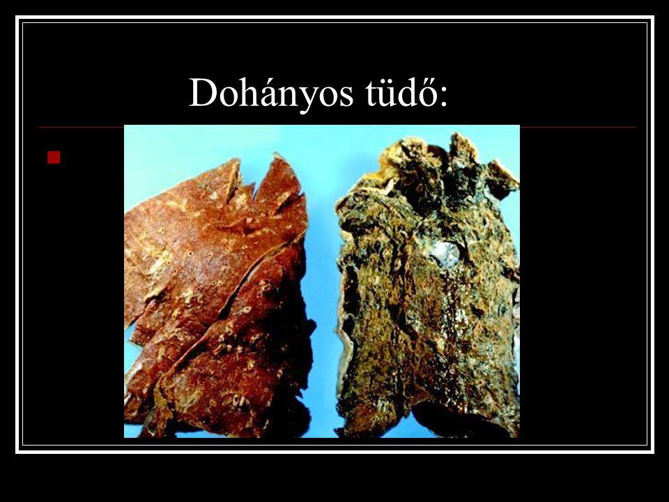 Dohányos tüdő: A dohányos tüdő: