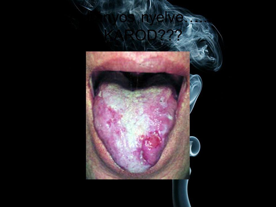 Egy dohányos nyelve…..EZT AKAROD???