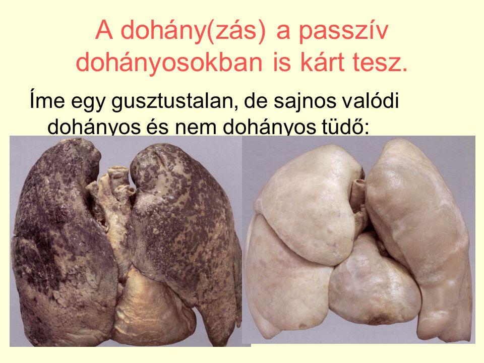 A dohány(zás) a passzív dohányosokban is kárt tesz. Íme egy gusztustalan, de sajnos valódi dohányos és nem dohányos tüdő:
