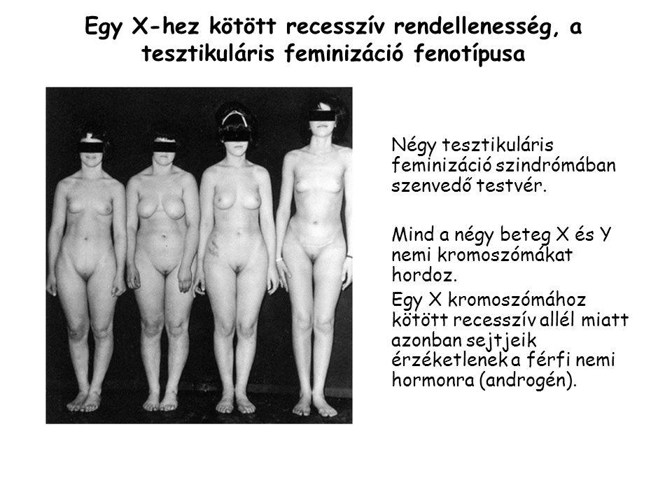 Négy tesztikuláris feminizáció szindrómában szenvedő testvér.